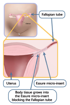 Essure Planned Parenthood Of Greater Ohio
