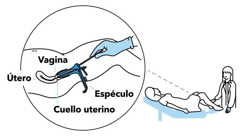 con la citología se puede detectar el vph